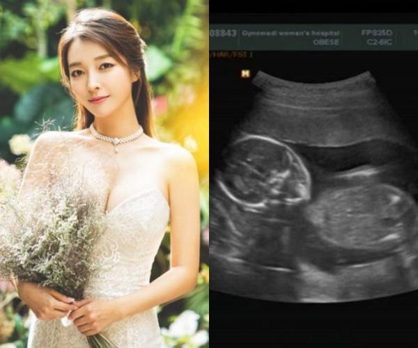 """'임신' 이상미, 초음파 사진 공개 """"태명 이든, 위험한 순간 많았지만..가슴 벅차""""[전문]"""